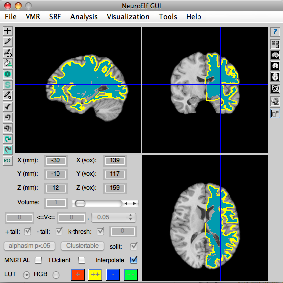 Back-projection of the ICBM-normalized left hemisphere of the colin dataset