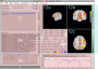 neuroelf_gui:main_ui_panels_v09c_110512.png