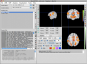 neuroelf_gui:main_ui_v09c_110512.png
