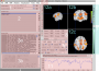 neuroelf_gui:main_ui_panels_v09c_110507.png