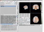 neuroelf_gui:main_ui_v09c_110507.png