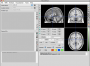 neuroelf_gui:main_ui_empty_v09c_110512.png