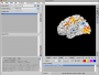 neuroelf_gui:main_ui_surfaceview.png