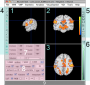 neuroelf_gui:neuroelf_gui_minimized_v09c.png