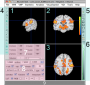 neuroelf_gui:neuroelf_gui_minimized_v09c_110512.png